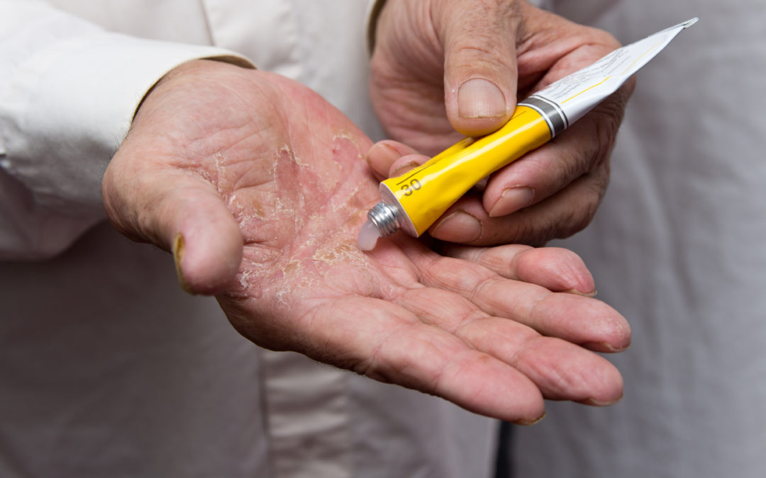 What Every Senior Should Know About Psoriasis